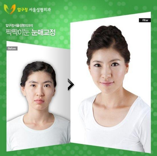 Antes e depois da cirurgia plástica coreana 31