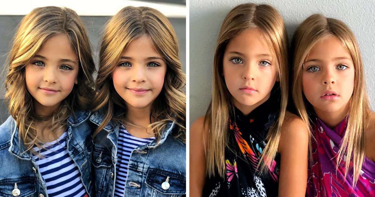 Conheça as irmãs consideradas as «gêmeas mais belas do mundo» 01