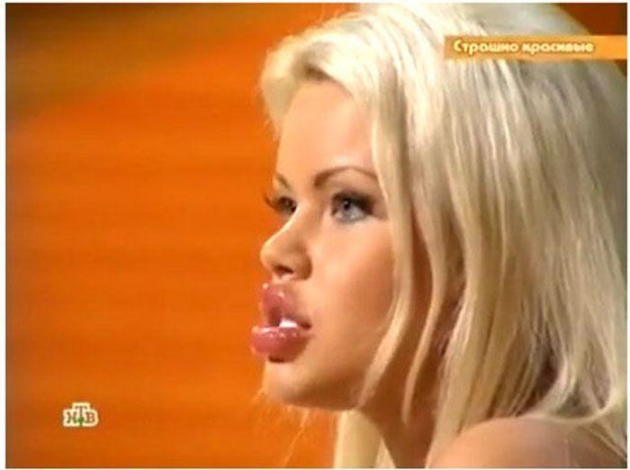 Marias beiçudas do mundo real, uma overdose de silicone 03
