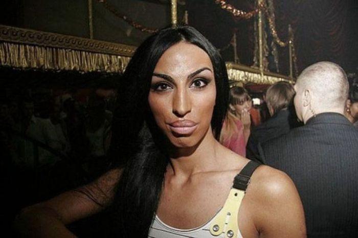 Marias beiçudas do mundo real, uma overdose de silicone 12