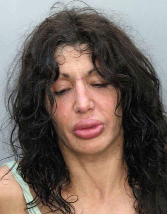 Marias beiçudas do mundo real, uma overdose de silicone 14