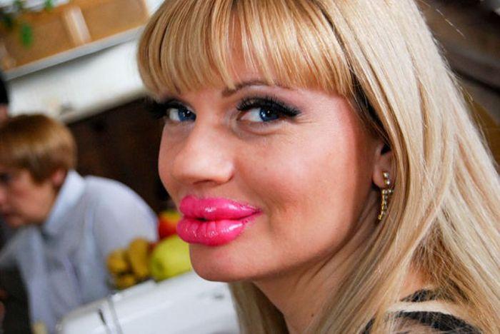 Marias beiçudas do mundo real, uma overdose de silicone 15