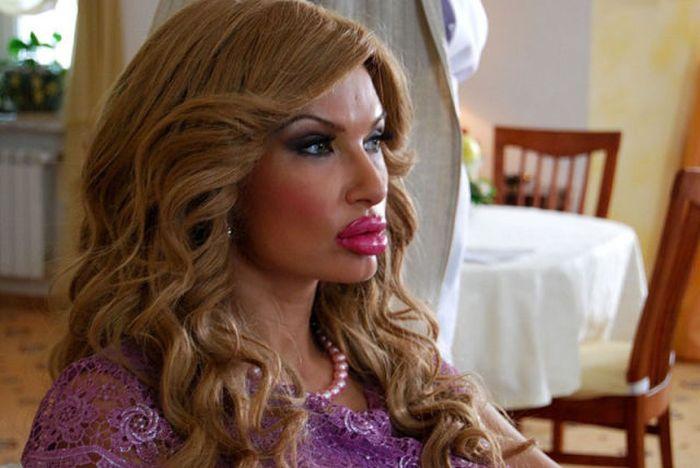 Marias beiçudas do mundo real, uma overdose de silicone 16