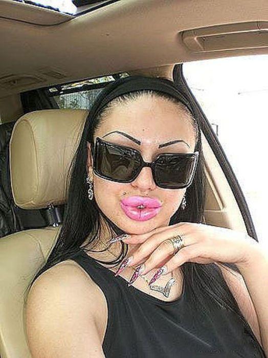 Marias beiçudas do mundo real, uma overdose de silicone 17