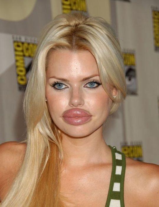 Marias beiçudas do mundo real, uma overdose de silicone 24