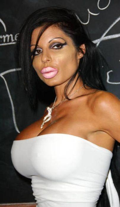 Marias beiçudas do mundo real, uma overdose de silicone 25