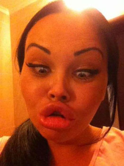 Marias beiçudas do mundo real, uma overdose de silicone 27