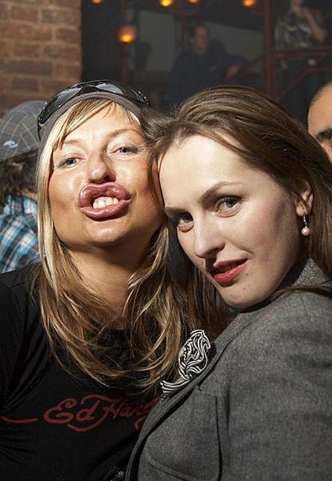 Marias beiçudas do mundo real, uma overdose de silicone 28