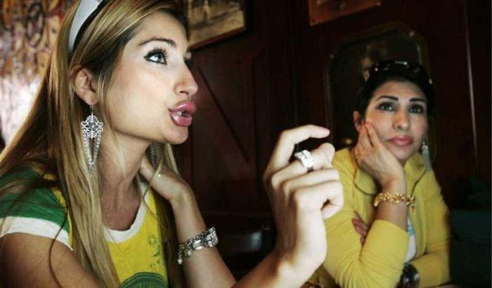 Marias beiçudas do mundo real, uma overdose de silicone 29