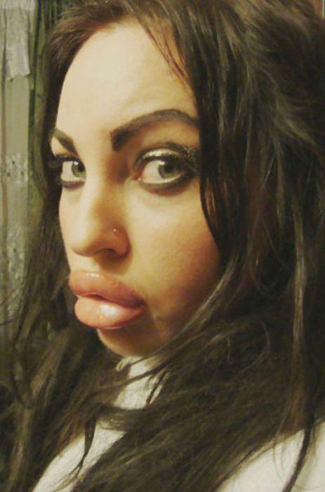 Marias beiçudas do mundo real, uma overdose de silicone 33