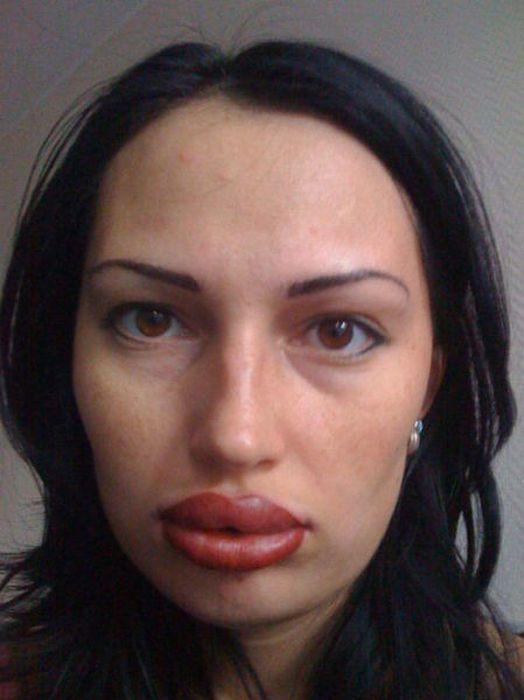 Marias beiçudas do mundo real, uma overdose de silicone 35