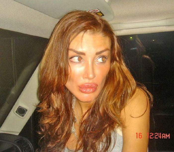 Marias beiçudas do mundo real, uma overdose de silicone 37