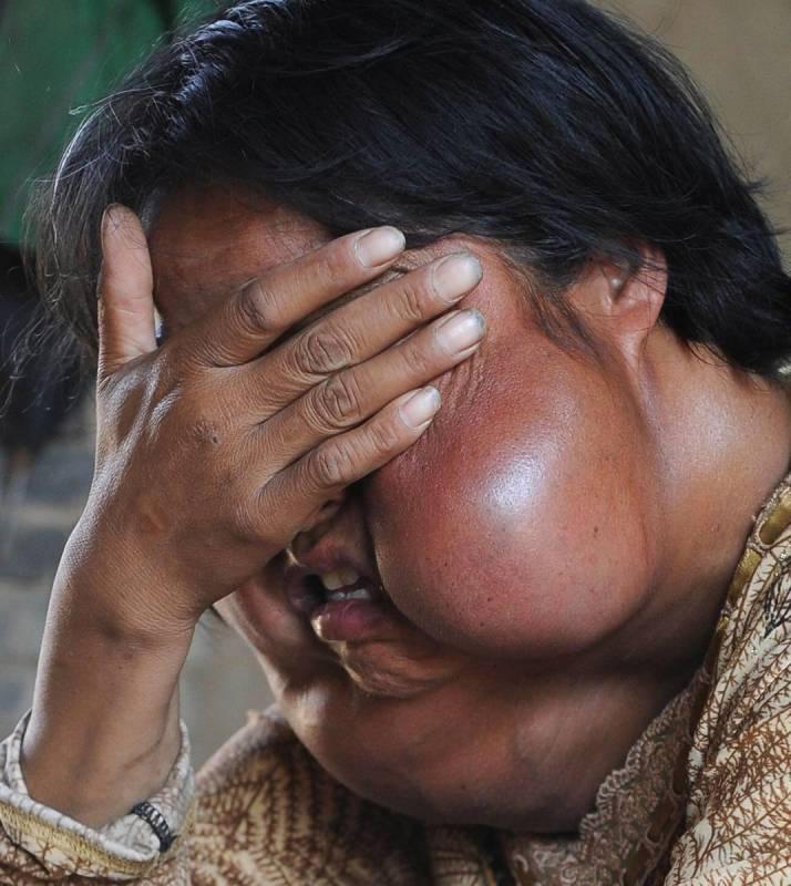 """""""Não sou um monstro"""", diz uma mulher com 7 tumores no rosto"""