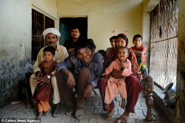 O homem elefante do Paquistão 05