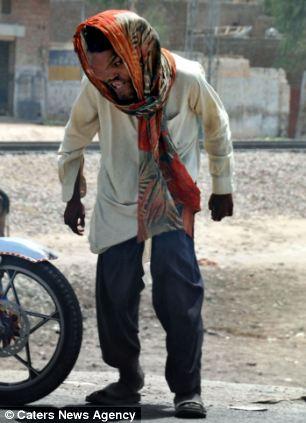 O homem elefante do Paquistão 06