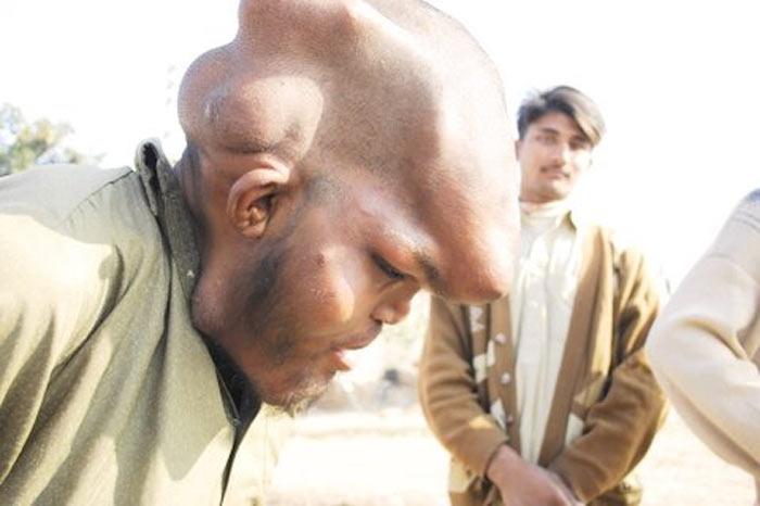 O homem elefante do Paquistão 07