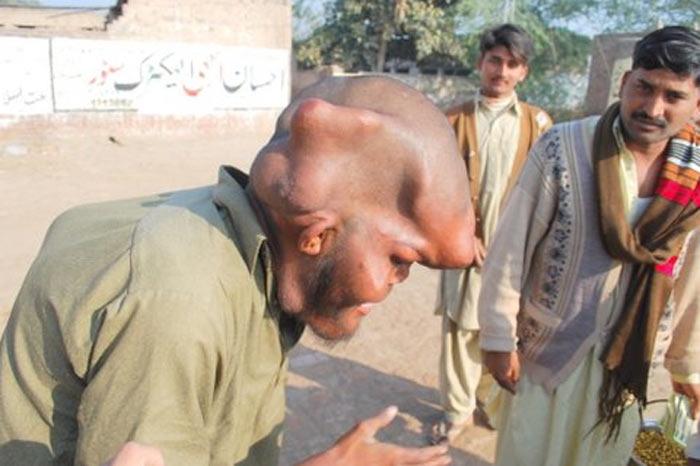 O homem elefante do Paquistão 08