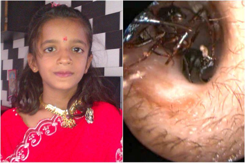 Os médicos já retiraram um formigueiro do ouvido desta menina