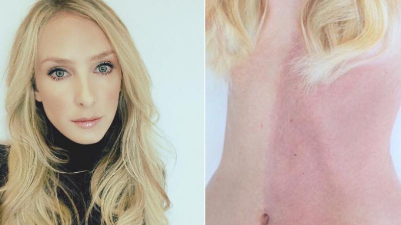 Mulher com dois tons de pele, dois sistemas imunológicos é uma singularidade médica viva