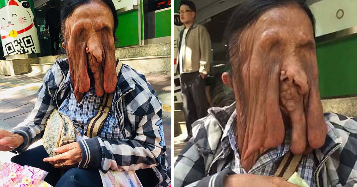 Por medo de morrer, idosa se recusa a fazer uma cirurgia para reparar seu rosto «derretido»