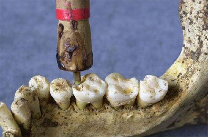 Assustadoras ferramentas odontológicas do passado 13