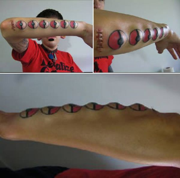 Os implantes corporais mais bizarros 06