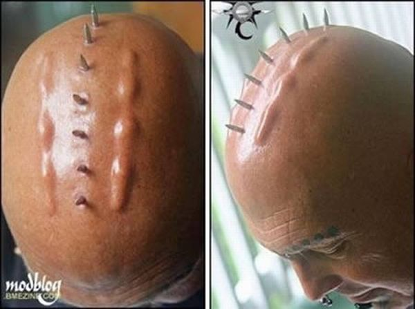 Os implantes corporais mais bizarros 11