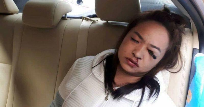 Mulher acaba com lápis delineador espetado em seu olho, enquanto retocava a maquiagem em um táxi