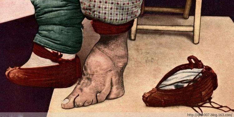Imagens antigas de mulhees pés de lírio 05
