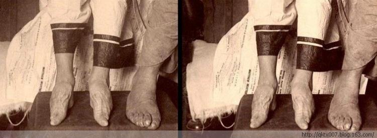 Imagens antigas de mulhees pés de lírio 11