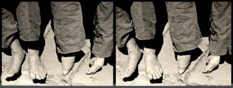 Imagens antigas de mulhees pés de lírio 12