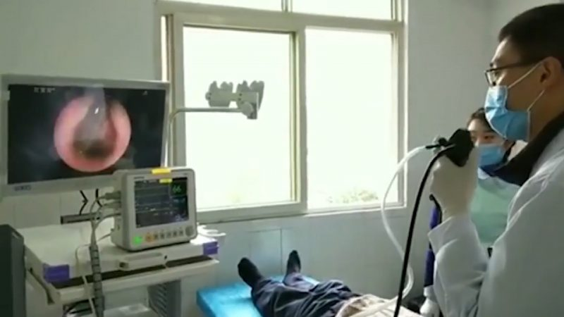 Chinês tossindo sem parar por dois meses tinha uma sanguessuga colada na garganta