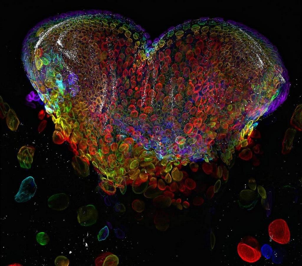 Micrografias assustadoras do Small World 2012