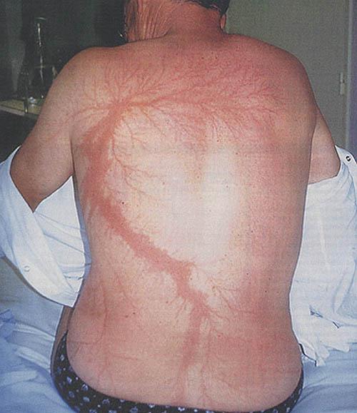 Como fica o corpo de alguém atingido por um relâmpago? 02
