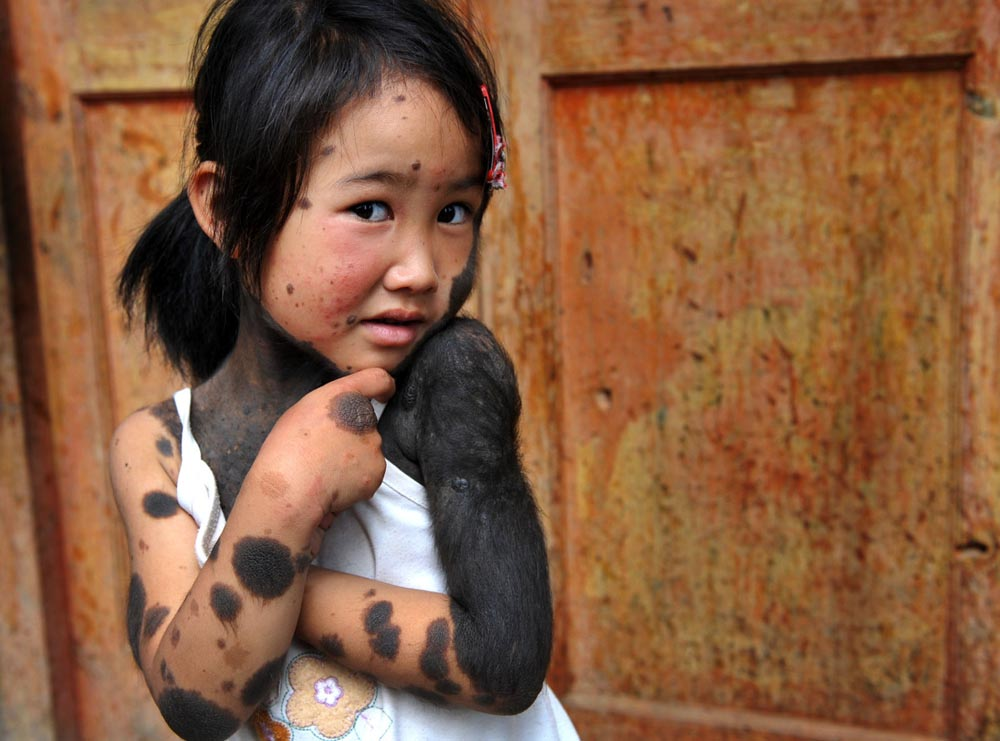 Pais abandonam filha lobisomem na China 01