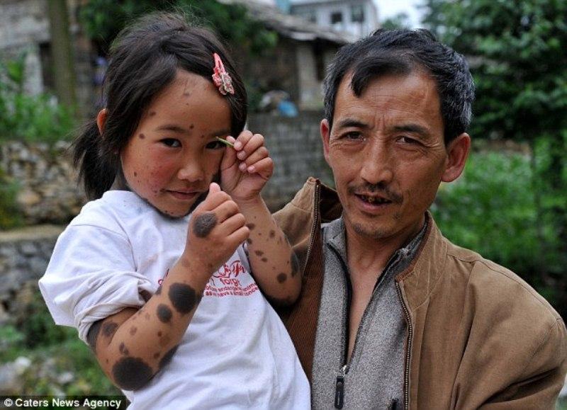 Pais abandonam filha lobisomem na China 02