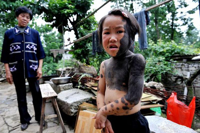Pais abandonam filha lobisomem na China 05