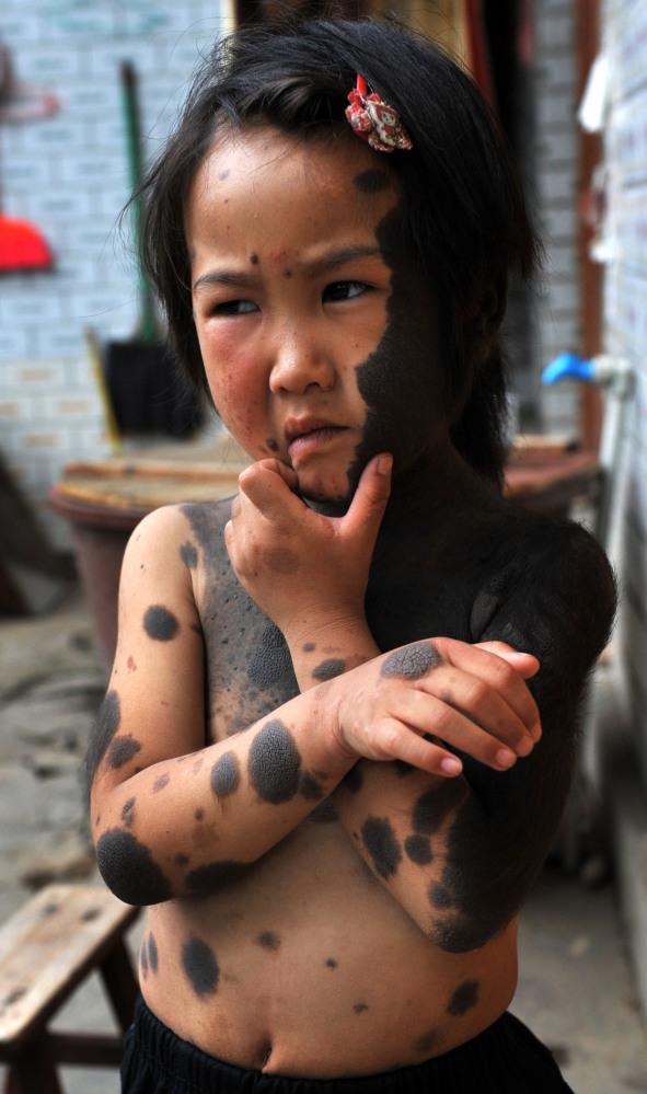 Pais abandonam filha lobisomem na China 07