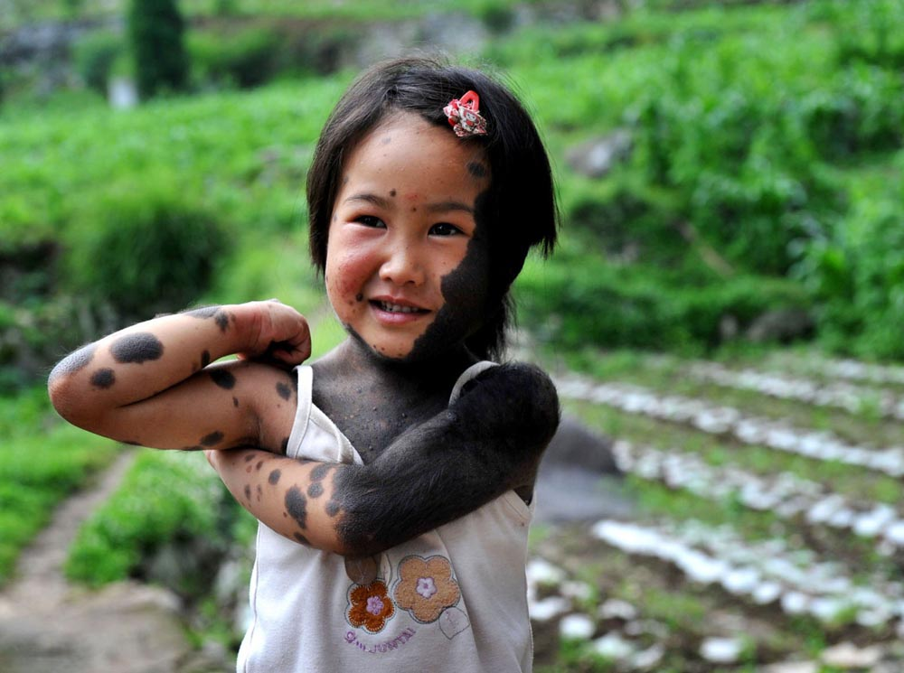 Pais abandonam filha lobisomem na China 08