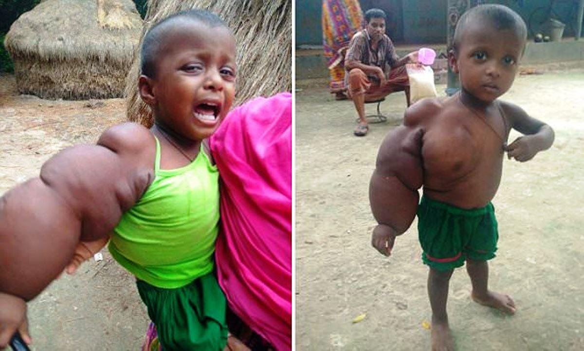 Garotinha de 2 anos mal pode caminhar com seu braço que pesa 3kg
