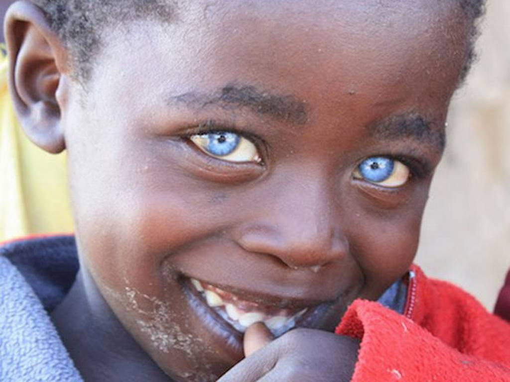 A cor dos olhos deste garoto surpreendeu o mundo
