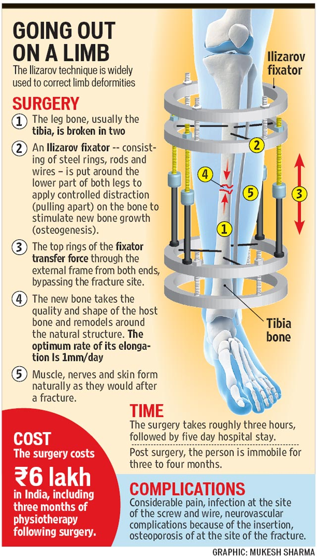 Quebrando as pernas por alguns centímetros extras, uma tendência crescente no mundo da cirurgia estética