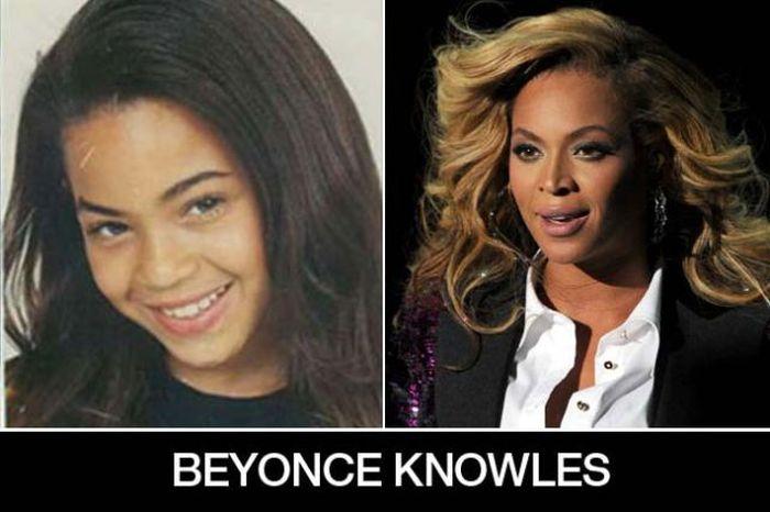 Um post quase definitivo de antes e depois de famosos 11