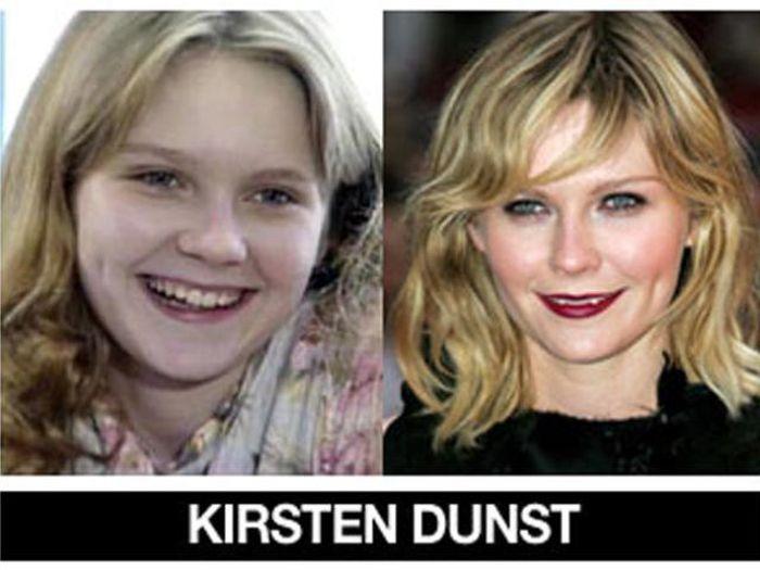Um post quase definitivo de antes e depois de famosos 47
