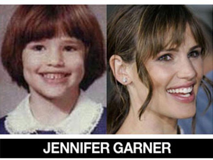 Um post quase definitivo de antes e depois de famosos 50