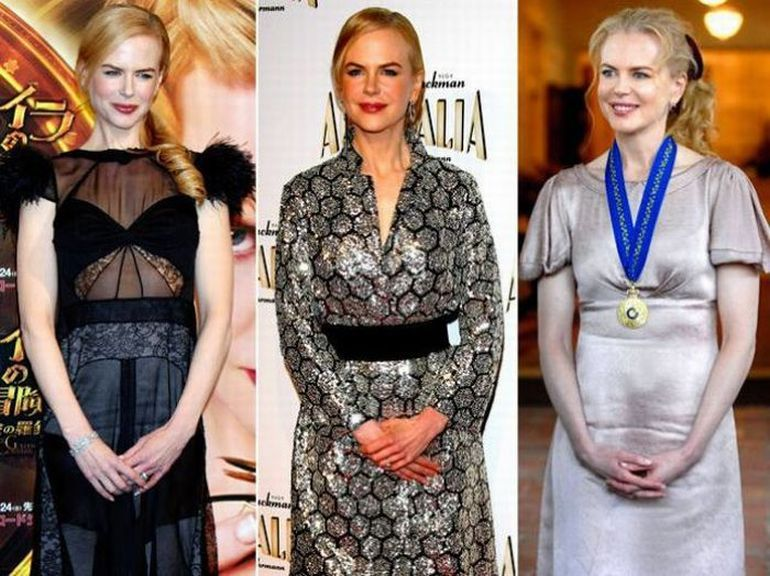 As poses prediletas dos famosos 27