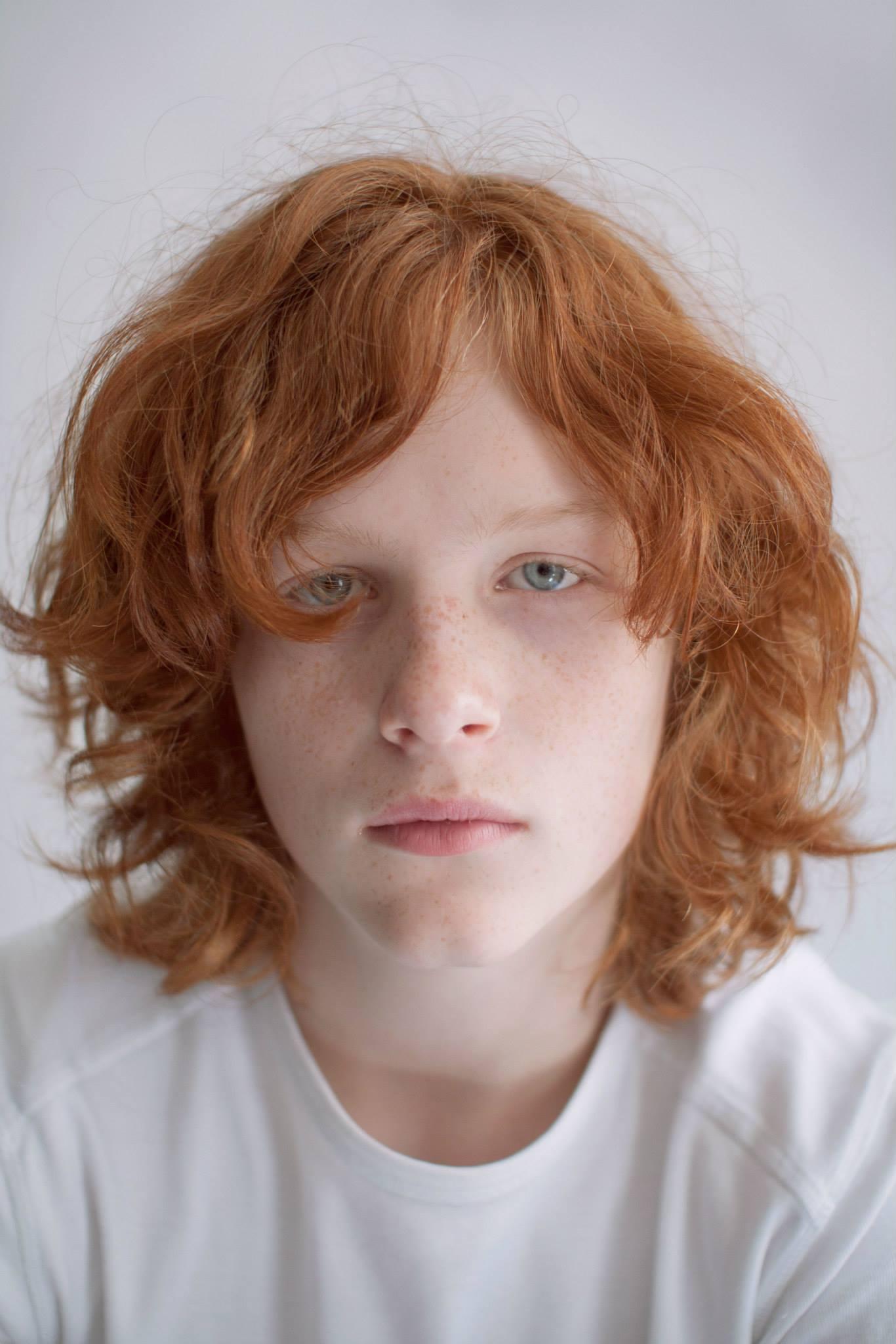 Projeto Ginger: Retratos que lutam contra a discriminação aos ruivos 01