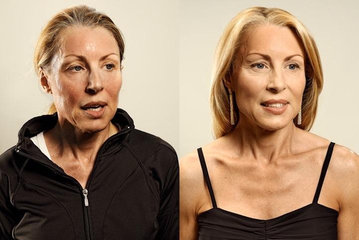Antes e depois de corredores 06