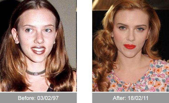 Transformações - Antes e depois 01