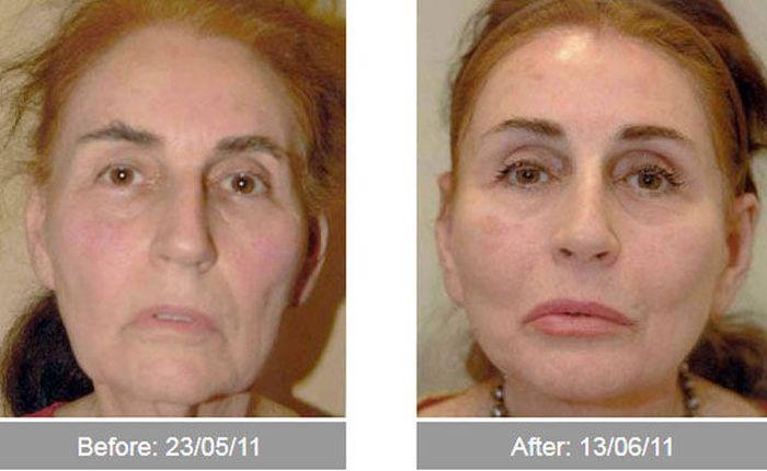 Transformações - Antes e depois 03